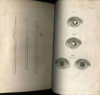 Practical Observations on the Formation of an Artificial Pupil, in Several Deranged States of the Eye; to which are annexed, Remarks on the Extraction of Soft Cataracts, and Those of the Membraneous Kind, through a Puncture in the Cornea.